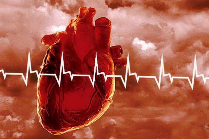 Причины сердечно-сосудистых болезней